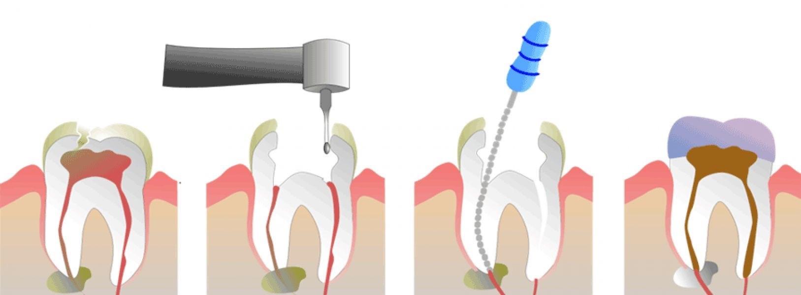 endodontsko