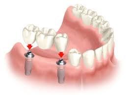 implantologija 2