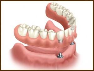 implantologija 3