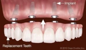 implantologija 4